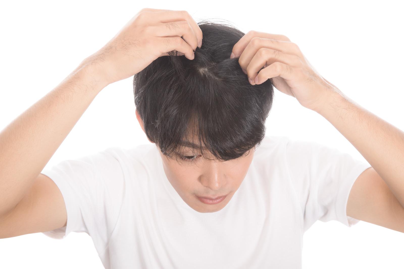 髪が薄くボリュームアップしたい男性